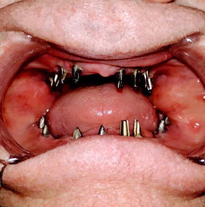 Hazai és külföldi fog implantátumok