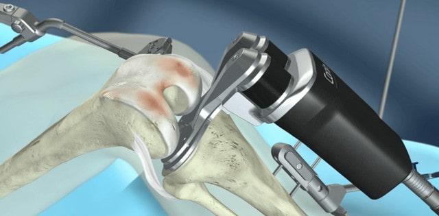 A térdízület gyógyítása arthroszkópos térdműtéttel